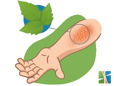 How to heal poison ivy rash