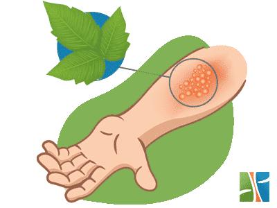 How to heal poison ivy rash
